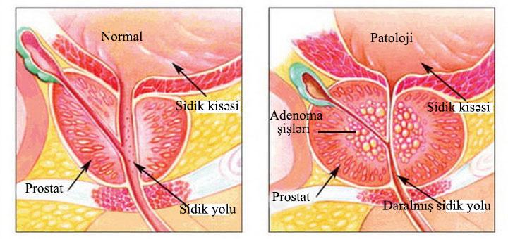 prostatefig012
